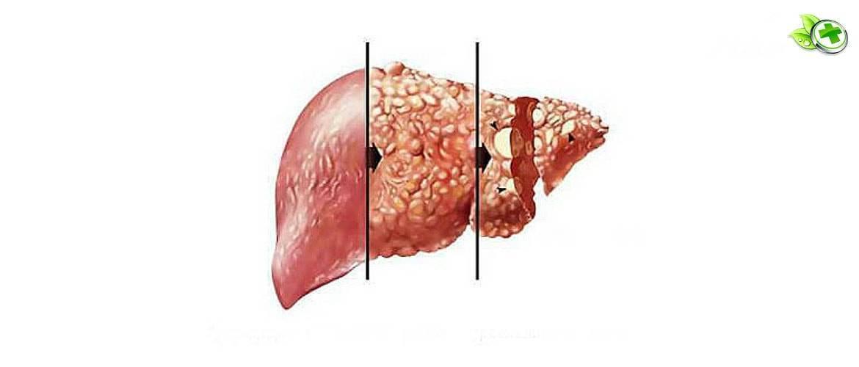 симптомы алкогольного цирроза печени