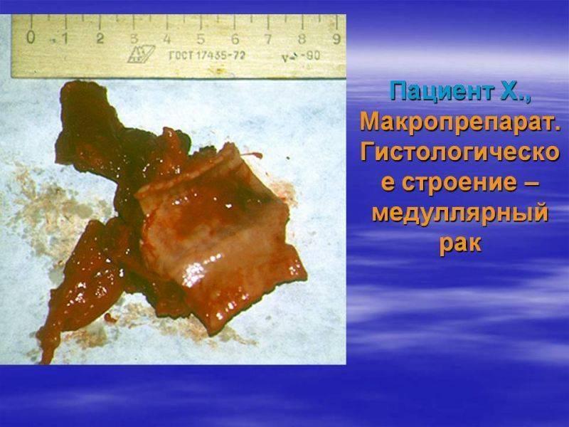Фолликулярный рак щитовидной железы: симптомы, операция