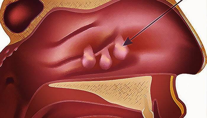 Полипы в носу: причины, признаки, лечение, операции