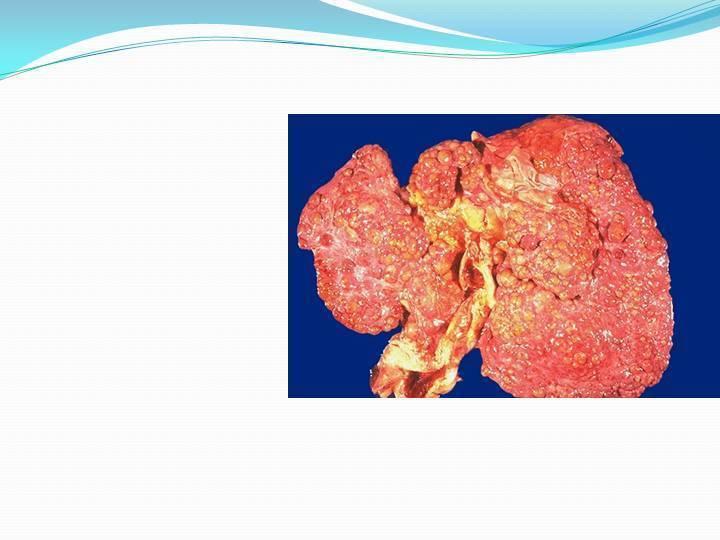 декомпенсированный цирроз печени сколько живут