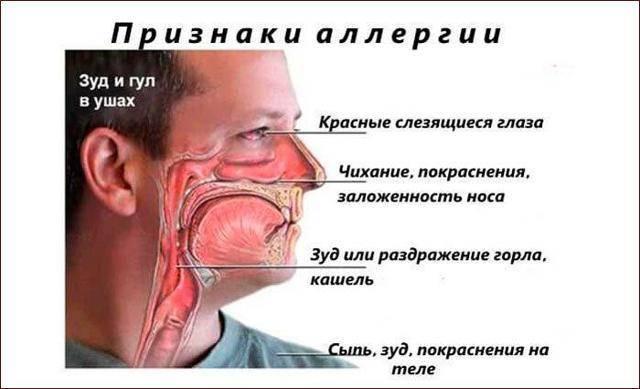 насморк слезотечение чихание лечение