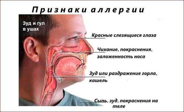 Причины и лечение заложенности носа по утрам