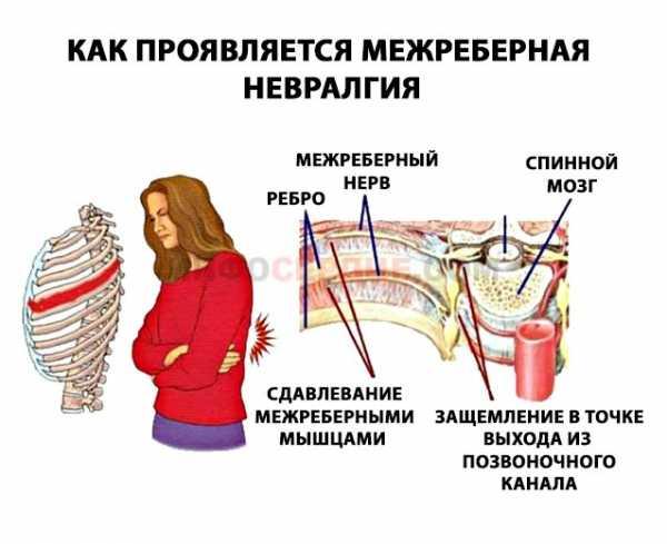 уколы от межреберной невралгии