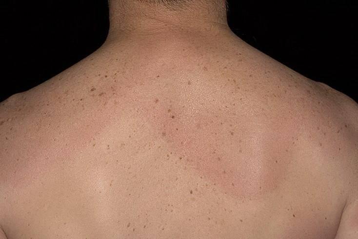 Клещевой дерматит – похожее на чесотку заболевание