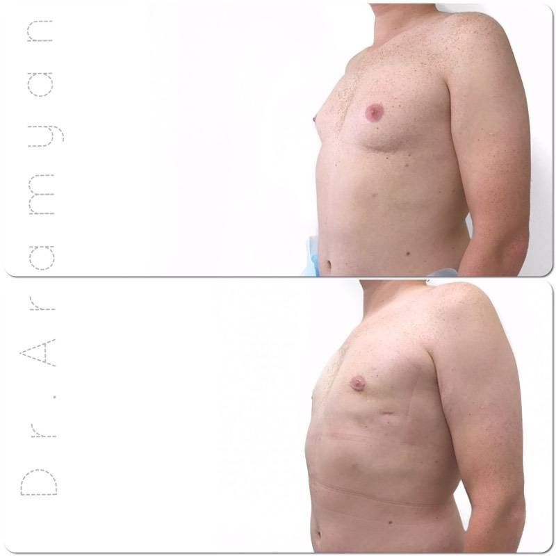 Гинекомастия у мужчин: симптомы, диагностика, лечение