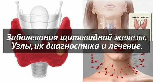Что делать если растет узел на щитовидке