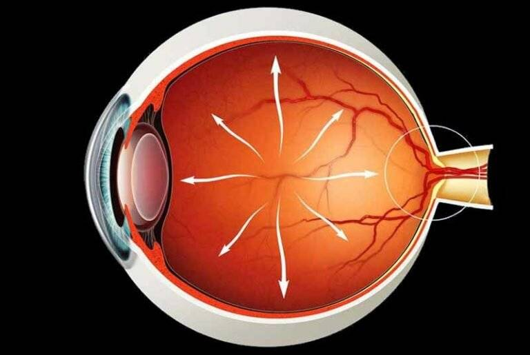 Вторичная глаукома лечение возможность восстановить зрение
