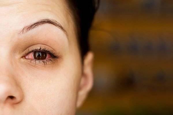 натерло глаз линзой