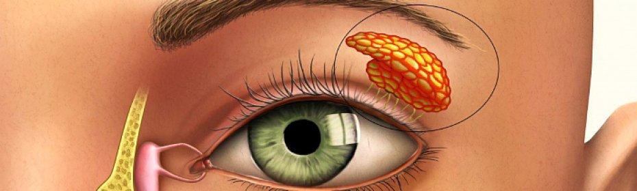 Симптомы и методы лечения воспаления слезного канала у взрослых
