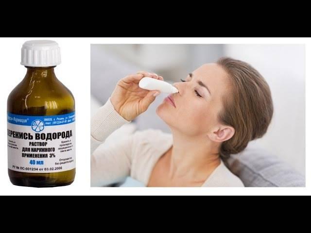 гайморит лечение перекисью водорода