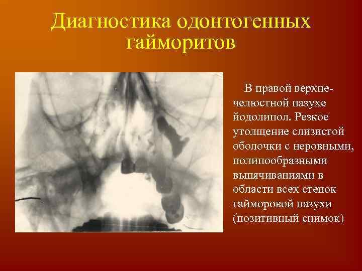 Острое воспаление околоносовых пазух