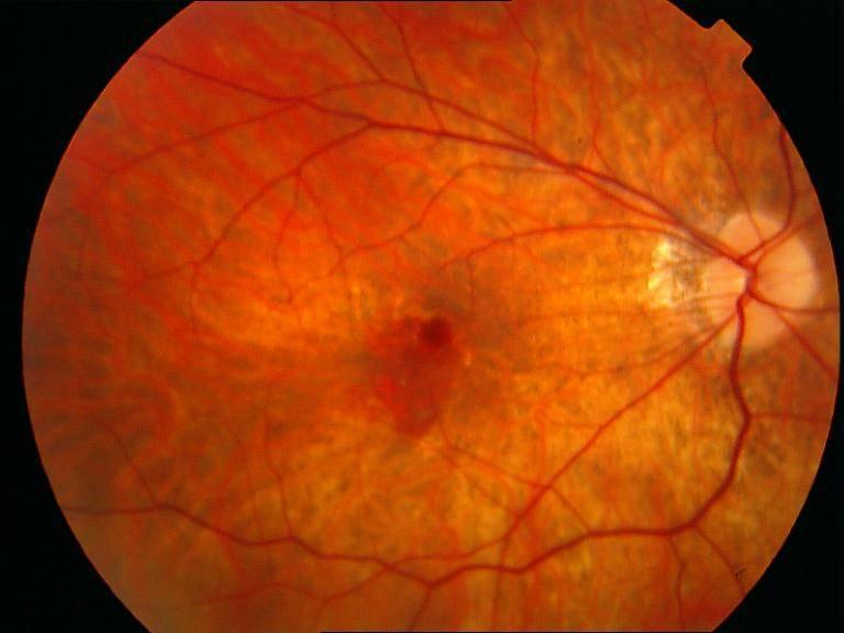 Отек сетчатки глаза - причины и лечение