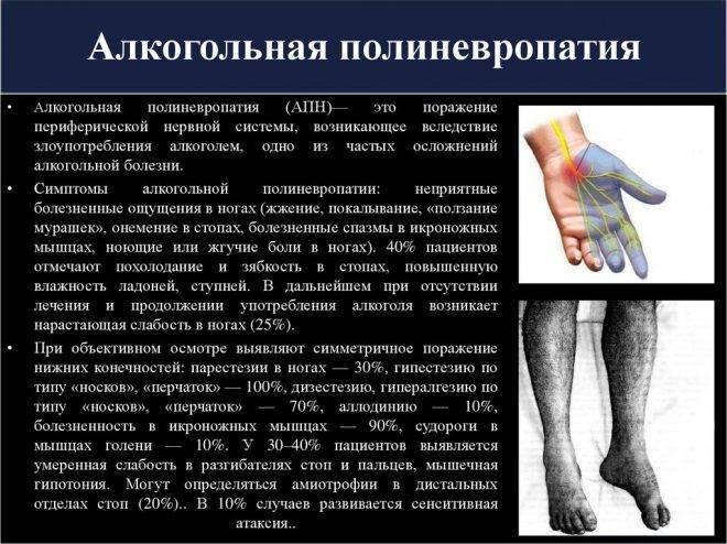 Виды полинейропатии: что это за синдром, как лечить, осложнения и последствия