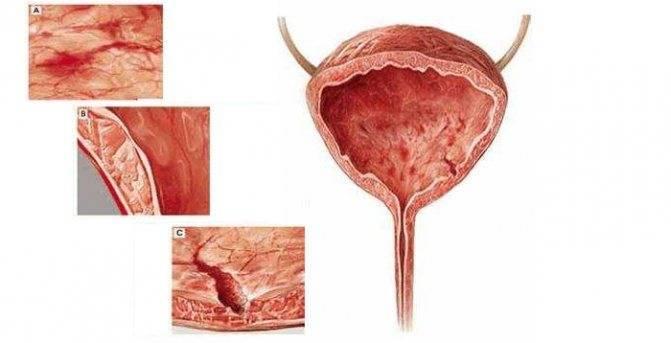 Цистит – болезнь, требующая внимания, особенно во время месячных