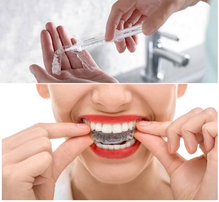 Домашнее отбеливание: капа для зубов и советы профессионалов