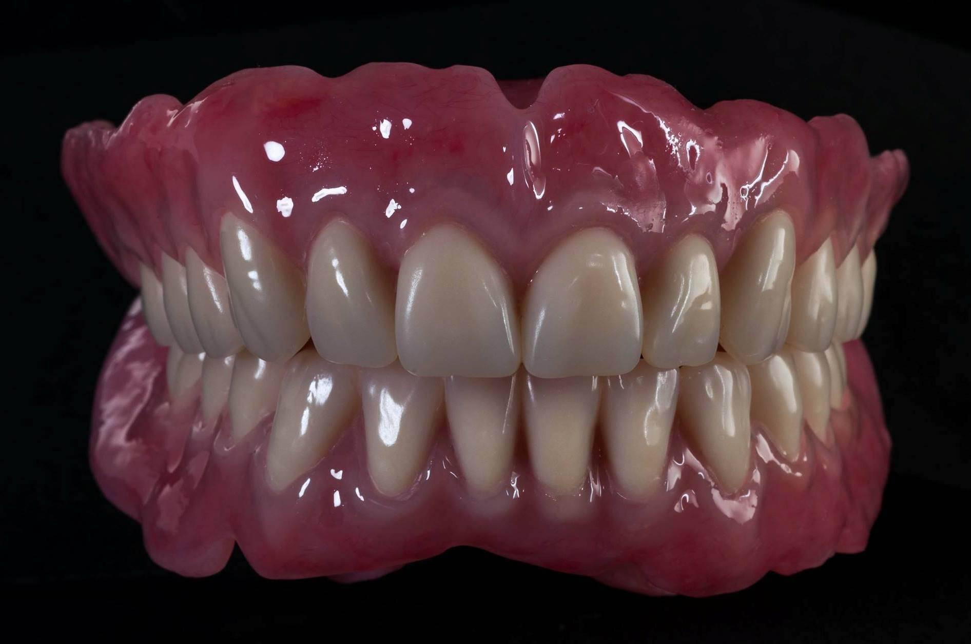 протезы зубов