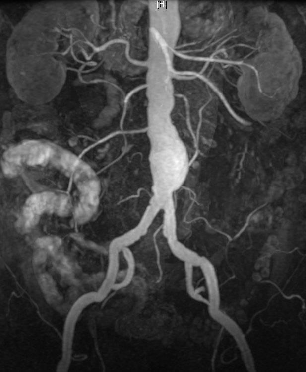 Признаки развития атеросклероза брюшного отдела аорты
