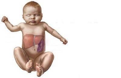 болезнь печени гепатомегалия у ребенка