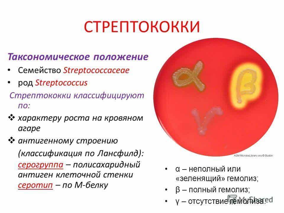 Стрептококковая ангина у детей и взрослых: симптомы, лечение, прогноз