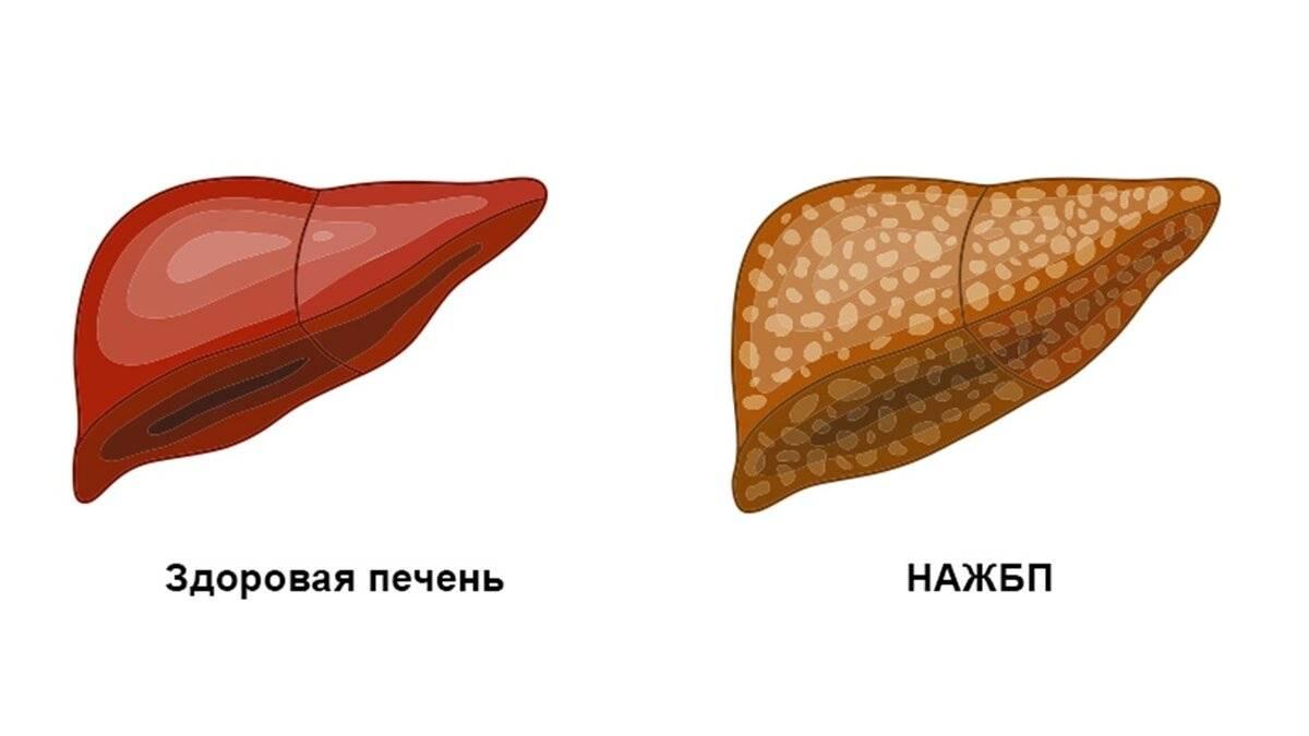 неалкогольная жировая болезнь печени лечение