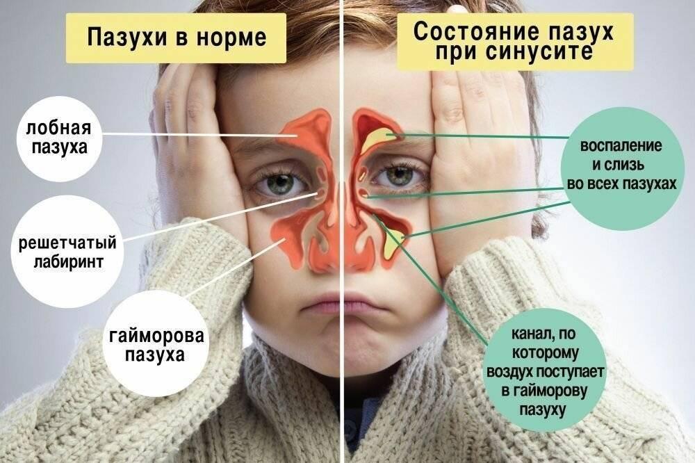 боль между бровями при насморке