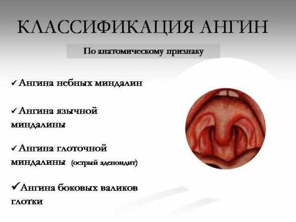 ангина в третьем триместре беременности