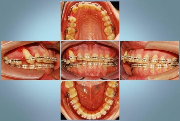 Удаление зубов при установке брекетов