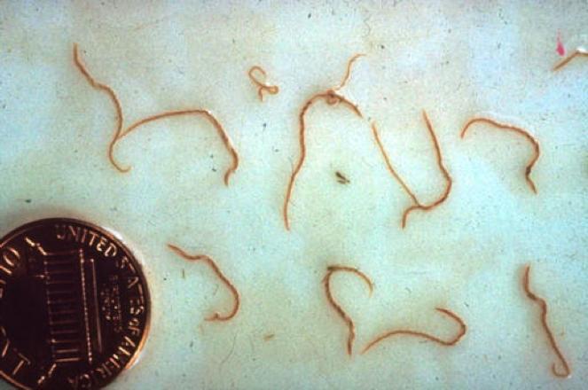 яйца паразитов в кале