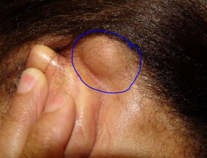 Жировик на ушной раковине что делать