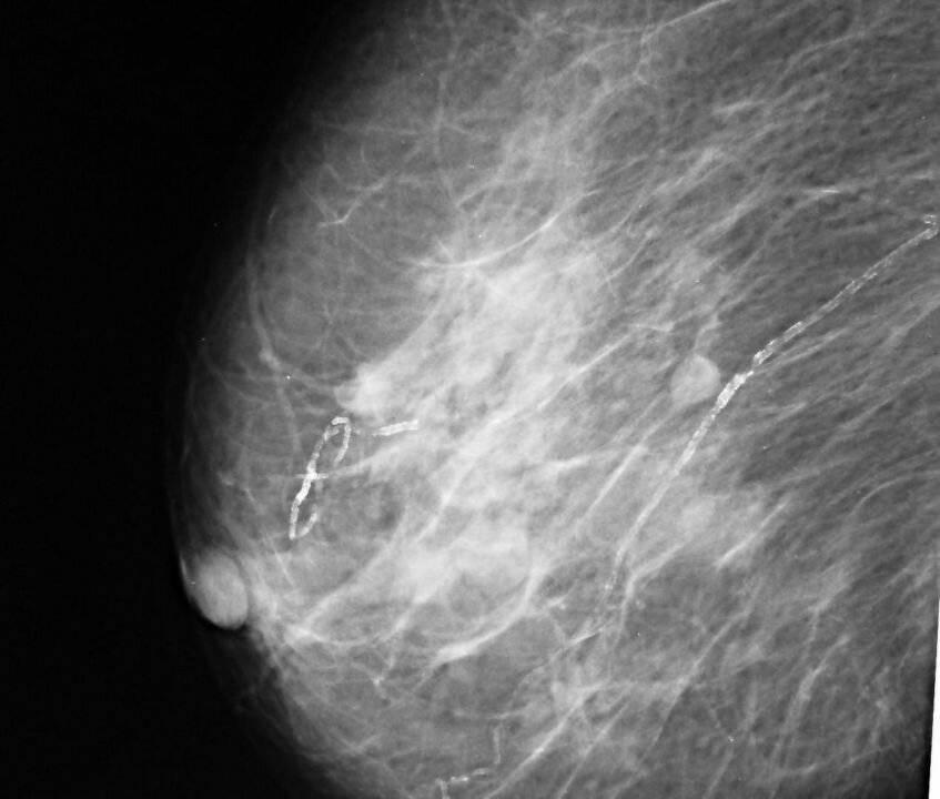 Народные средства лечения фибромиомы молочной железы