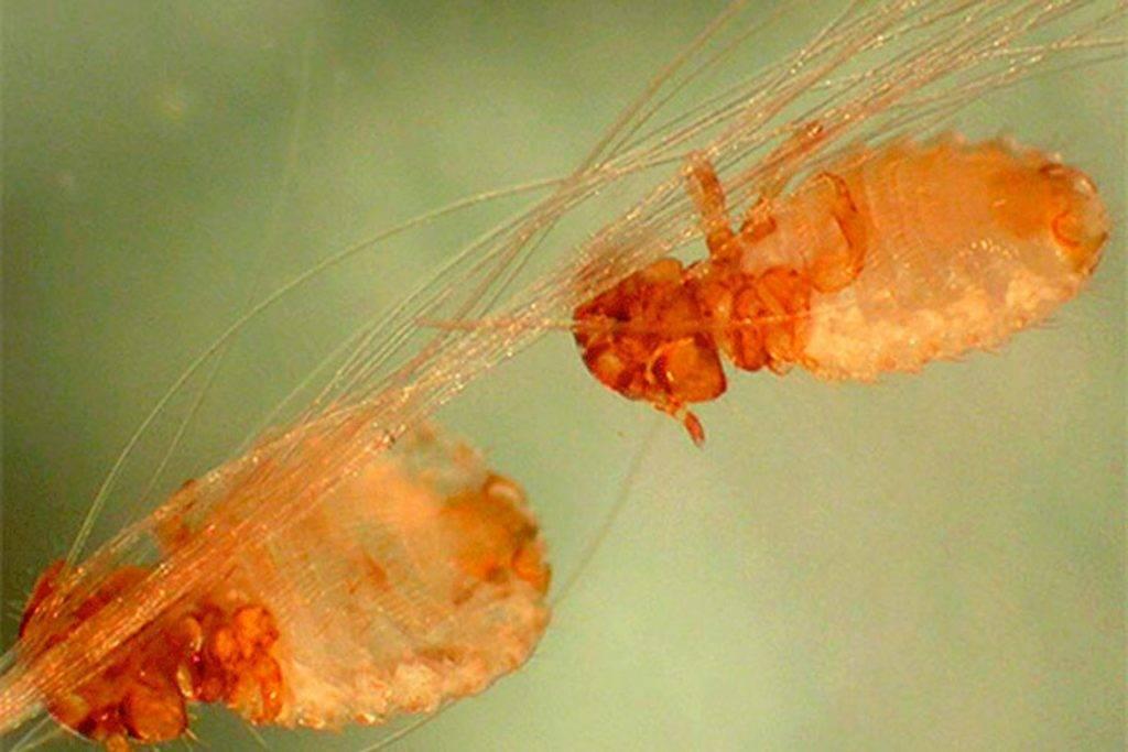 могут ли глисты вызвать аллергию