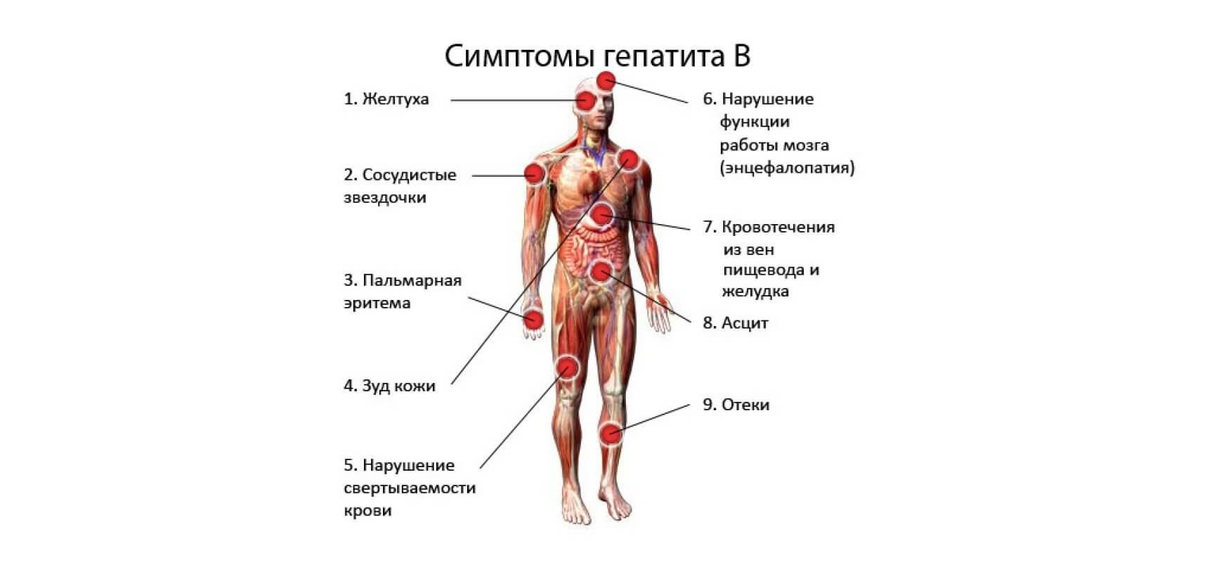 признаки заболевания гепатитом с