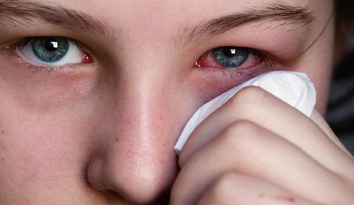аденовирусный конъюнктивит симптомы