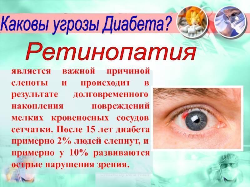 амавроз глаза