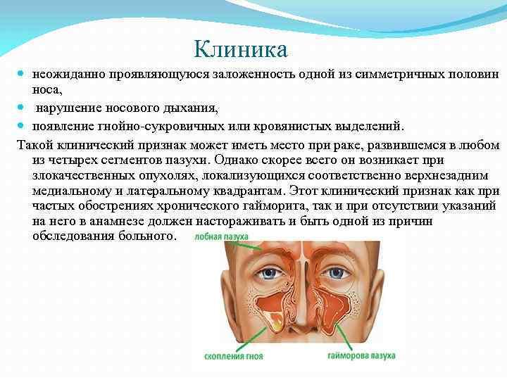 Злокачественные опухоли полости носа и околоносовых пазух: симптомы и лечение
