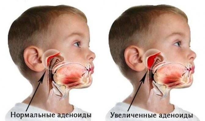 Советы о том, как победить детский храп: консультирует доктор комаровский