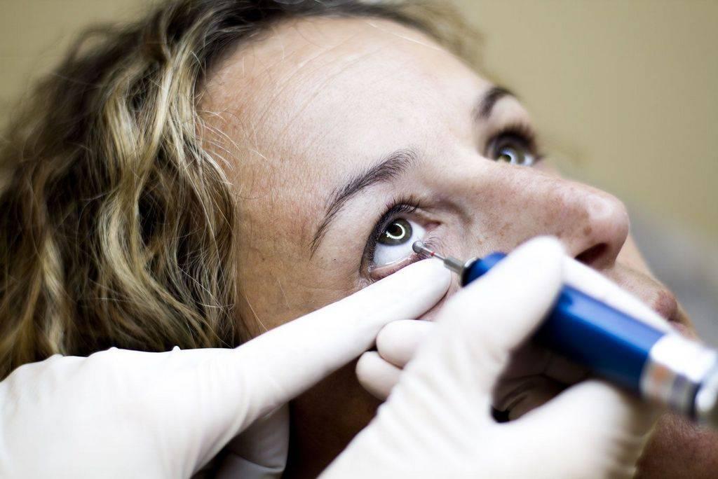 Что делать при сухости глаз: причины и лечение