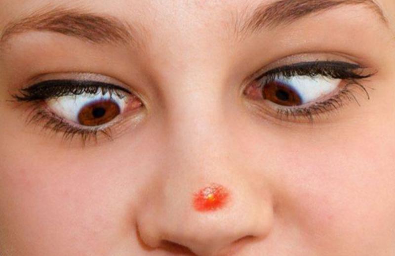 Как быстро избавиться от синяка на носу. эффективные способы лечения ушиба носа и переносицы