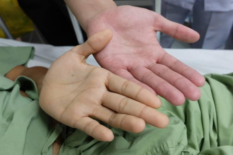 Гепатит с у мужчин: причины, симптомы и последствия. основы лечения и профилактики гепатита с у мужчин