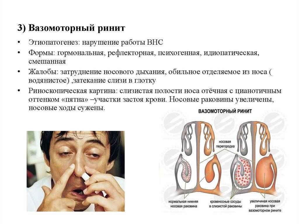 Симптомы и лечение хронического вазомоторного ринита
