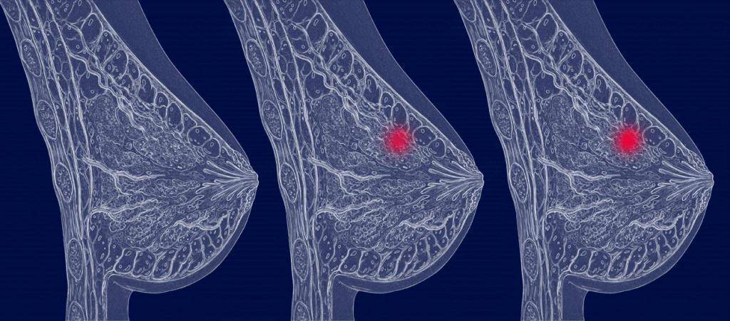 рак левой молочной железы