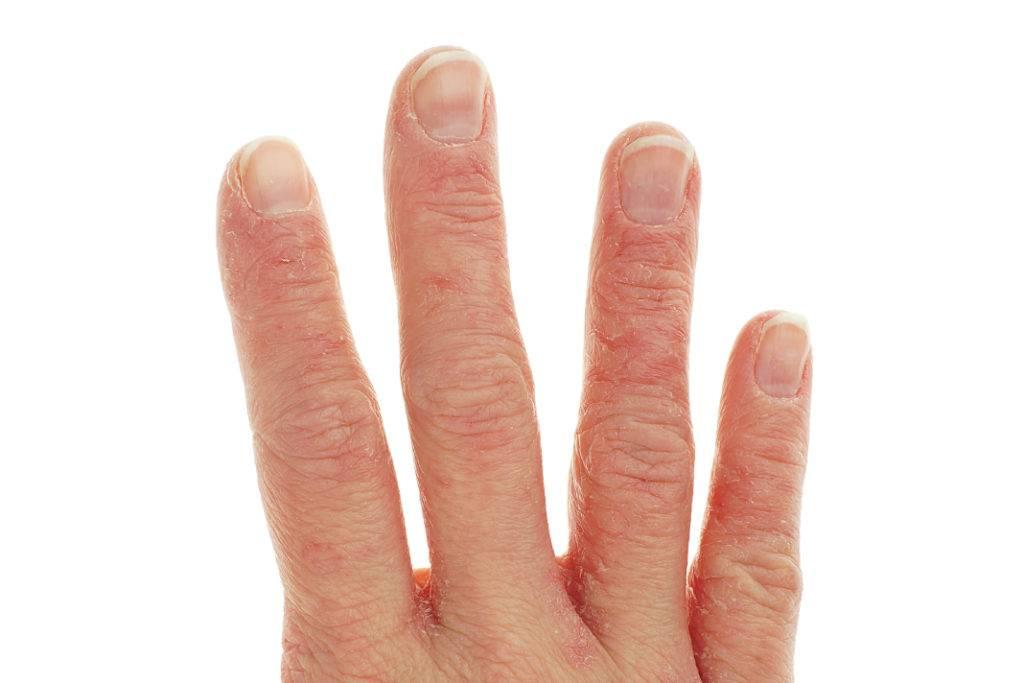 дерматит пальцев ребенка