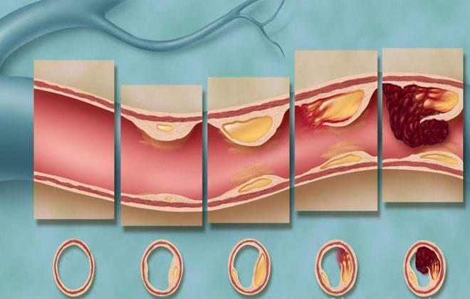 Растворение холестериновых бляшек в кровеносных сосудах
