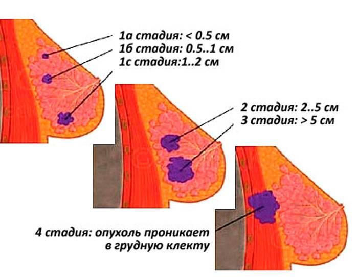 Основные виды рака молочной железы у женщин