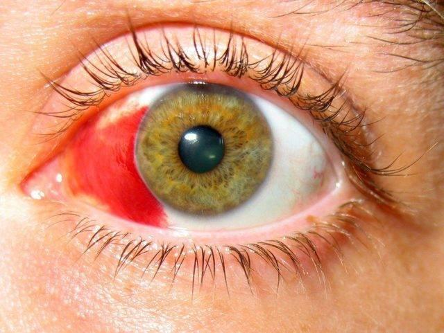 ожог роговицы глаза симптомы