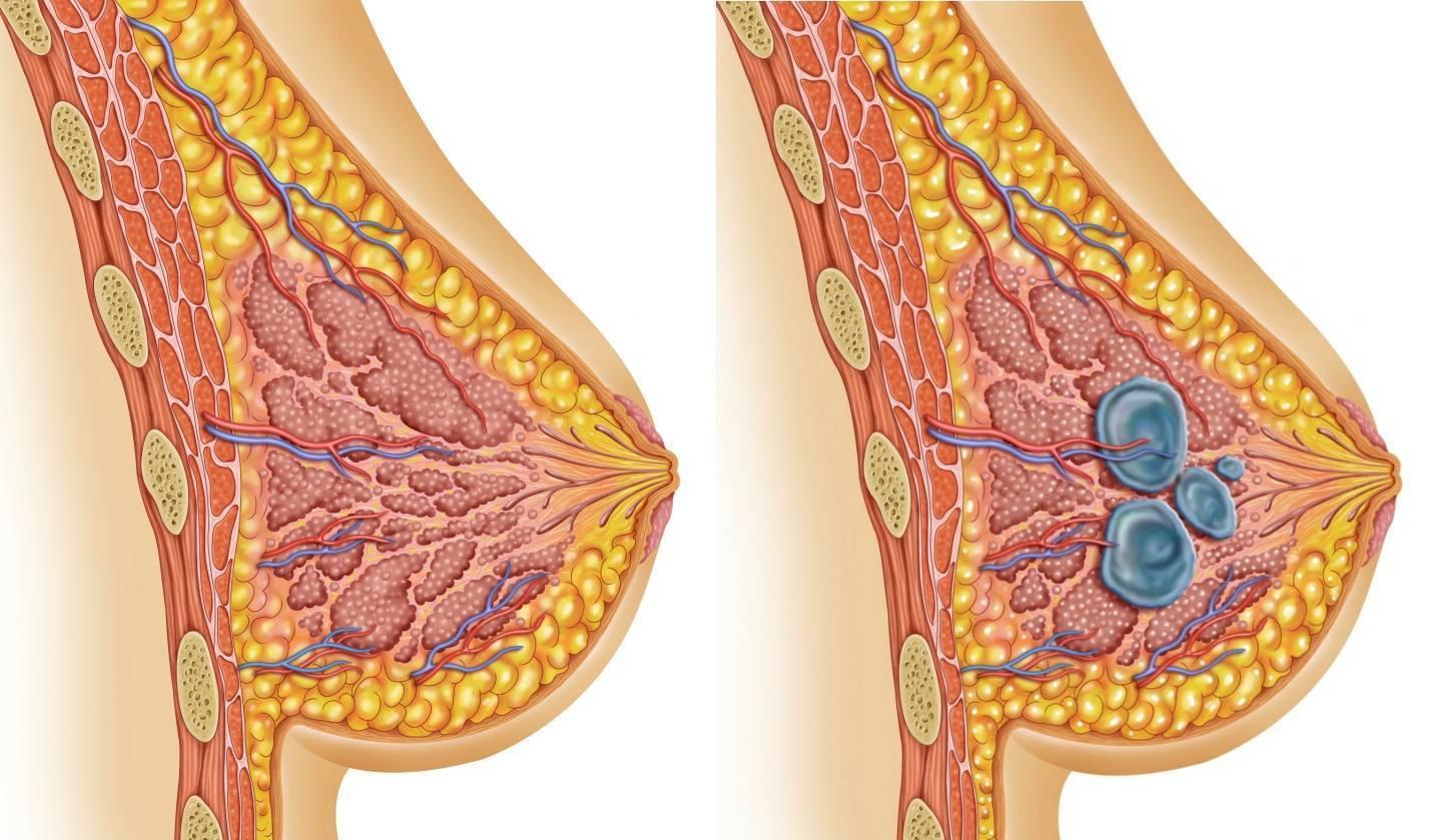 фиброзная мастопатия симптомы