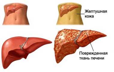 гептрал при раке печени 4 стадии