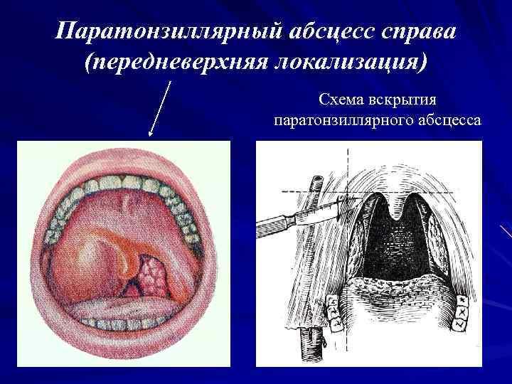 флегмонозная ангина лечение