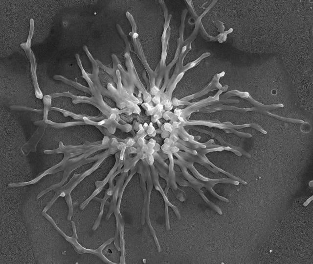 Кандидоз гортани: грибковое поражение носоглотки, симптомы и лечение