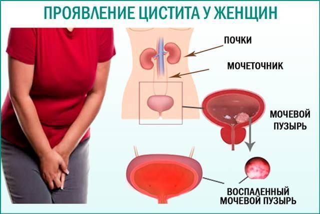 температура при цистите у ребенка